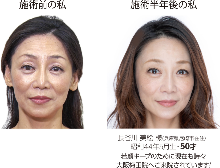 長谷川様Before-After